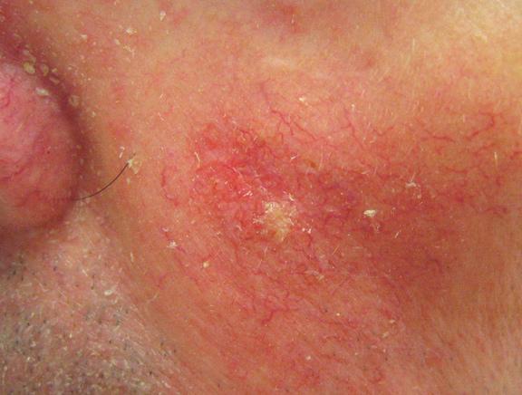 Types Of Skin Cancers Transplant Skin Cancer Network